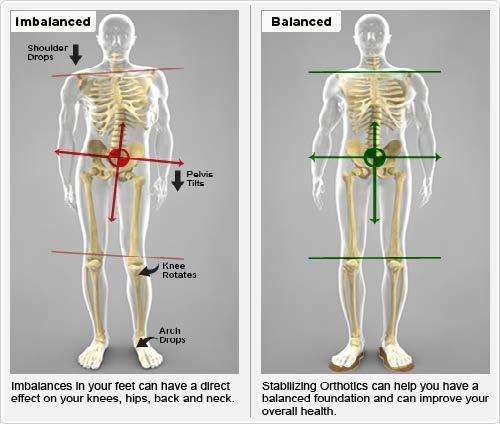 imbalance-vs-balance
