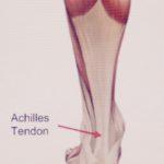 Achilles Tendinit