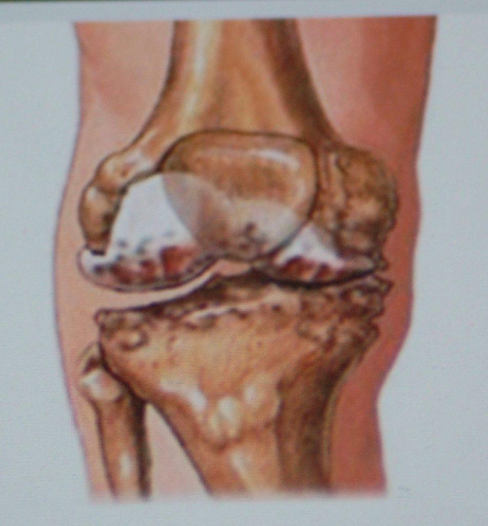 knasen i knæet